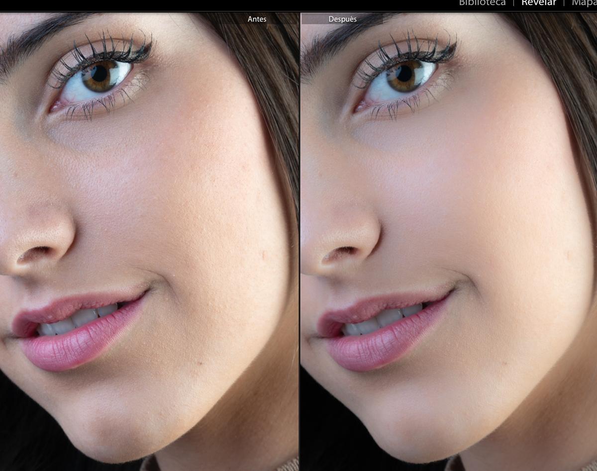 Antes y después del suavizado de piel